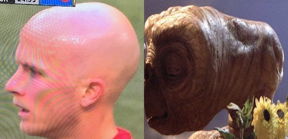 Michael Bradley's oblong head, as contrasted with that of E.T's.